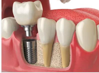 Regency Square Dental Accommodate