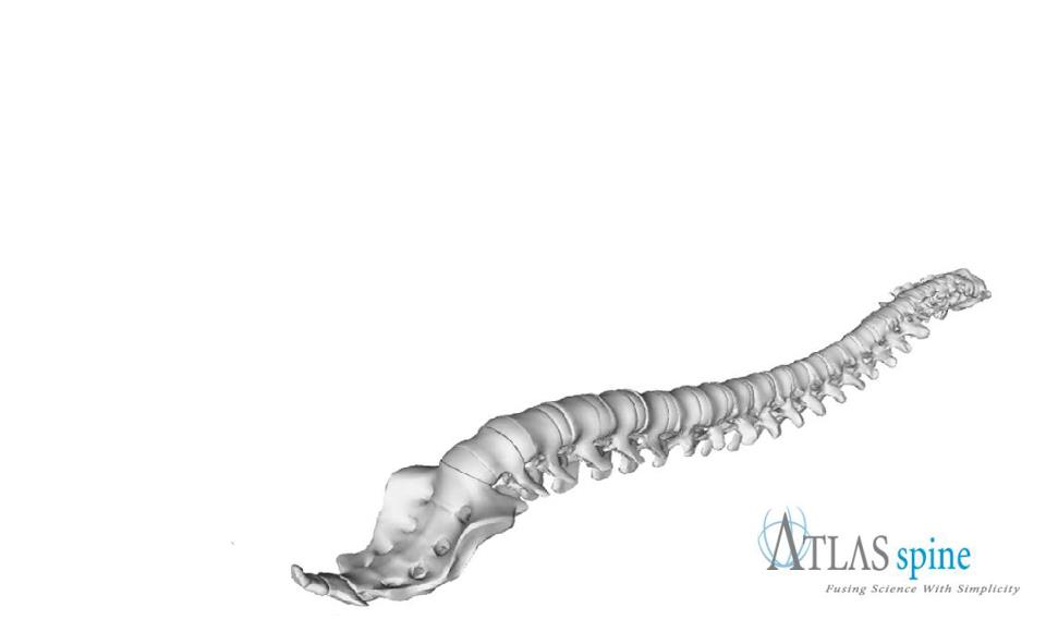 Atlas Spine 741-1108the