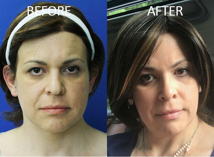 Mardirossian Facial Aesthetics - Jupiter Modification