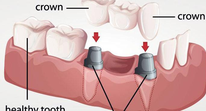 AP Dental Arts - North Palm Beach Informative
