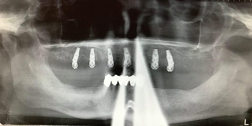 Hennessy Dental Laboratory Inc Specialization
