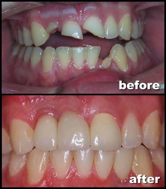 Riverside Dental Care - New York Shared(646)